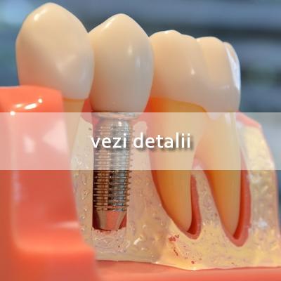 Implantologie Hover