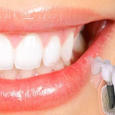 Patologia Orala