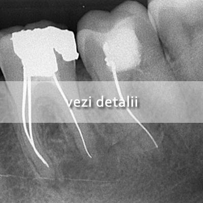 Endodontie Hiver