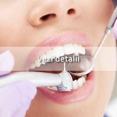 Estetica Dentara Hover