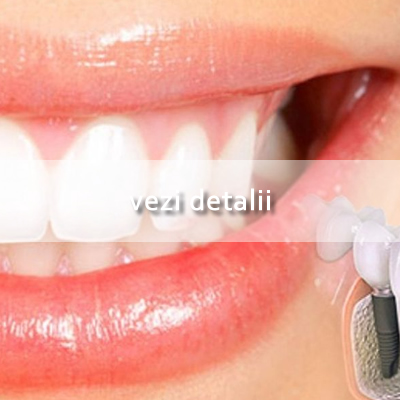 Patologia Orala Hover